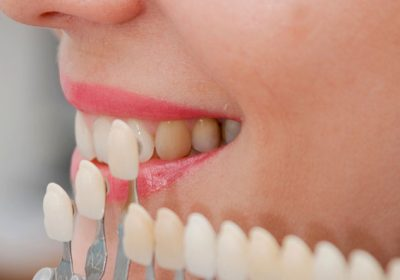 Cosmetic Dental Options From Dr. Oksana