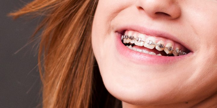 What are Orthodontics and its Importance?